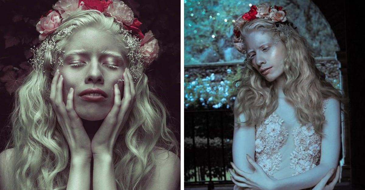La modelo albina que sigue desafiando los estándares de belleza con su hermosa piel