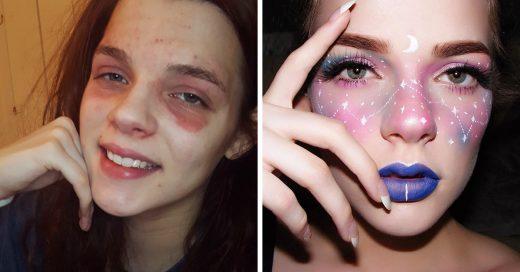 Artista del maquillaje realza la belleza de su eczema en Instagram