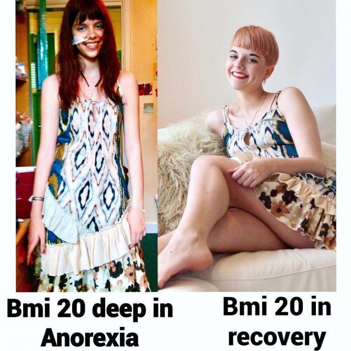 connie inglis chica con anorexia