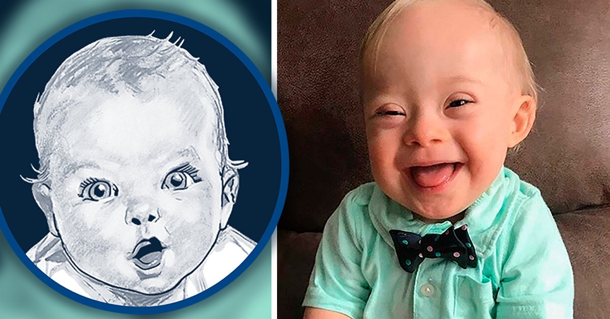 Conoce a Lucas, el primer bebé con síndrome de Down que será la imagen de Gerber