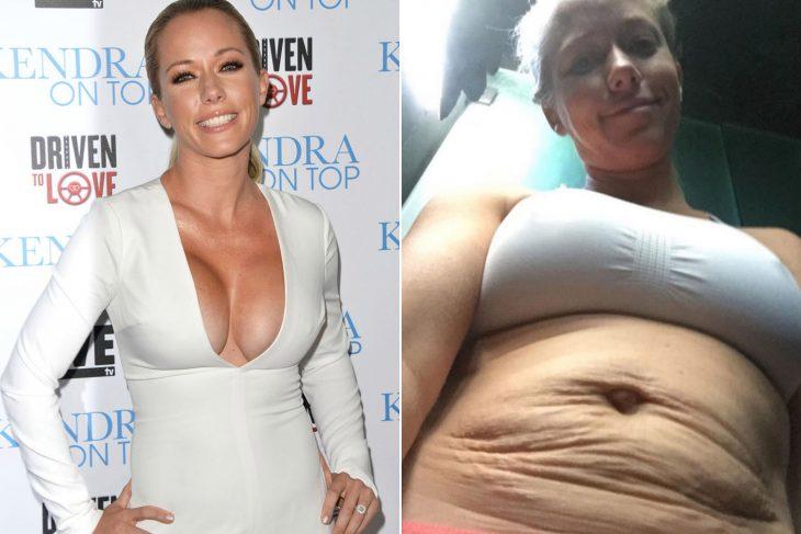 Kendra wilkns antes y después de ser madre