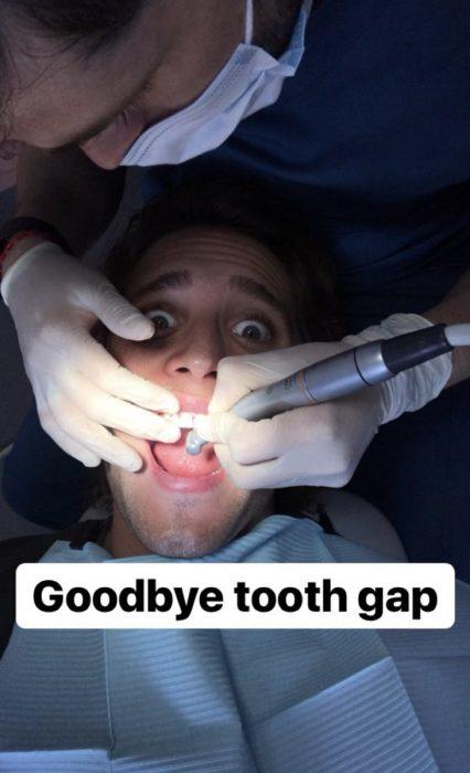 Diego Boneta separando sus dientes para interpretar a Luis Miguel