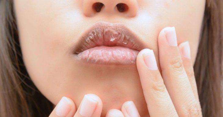 Chica con los labios partidos