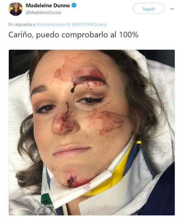 Chica que sobrevivio a accidente con delineador intacto