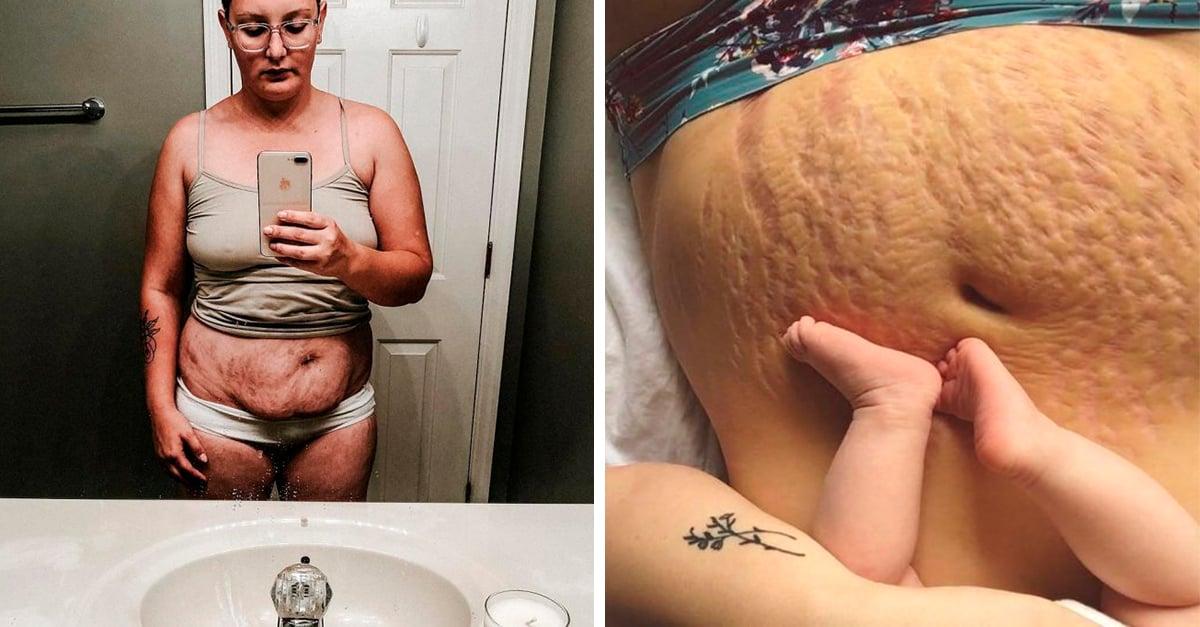 15 Madres que compartieron fotos de sus cuerpos tras el parto; muestran una realidad 100% precisa