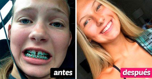 20 Increíbles cambios de dentadura después de usar brackets