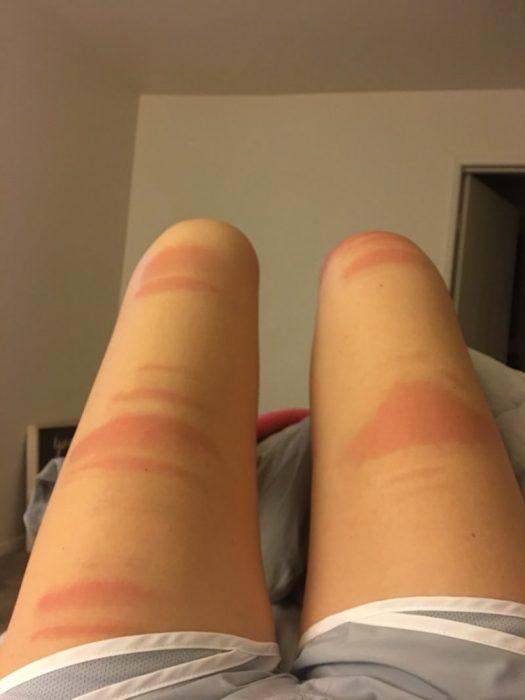 Marcas en las piernas por usar usando jeans rasgados