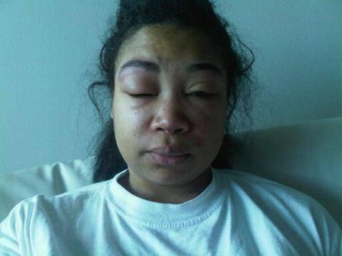 Mujer con el rostro hinchado debido al lupus