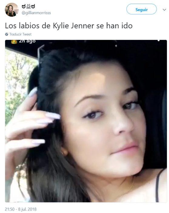 Comentarios en Instagram acerca de los nuevos labios de Kylie Jenner
