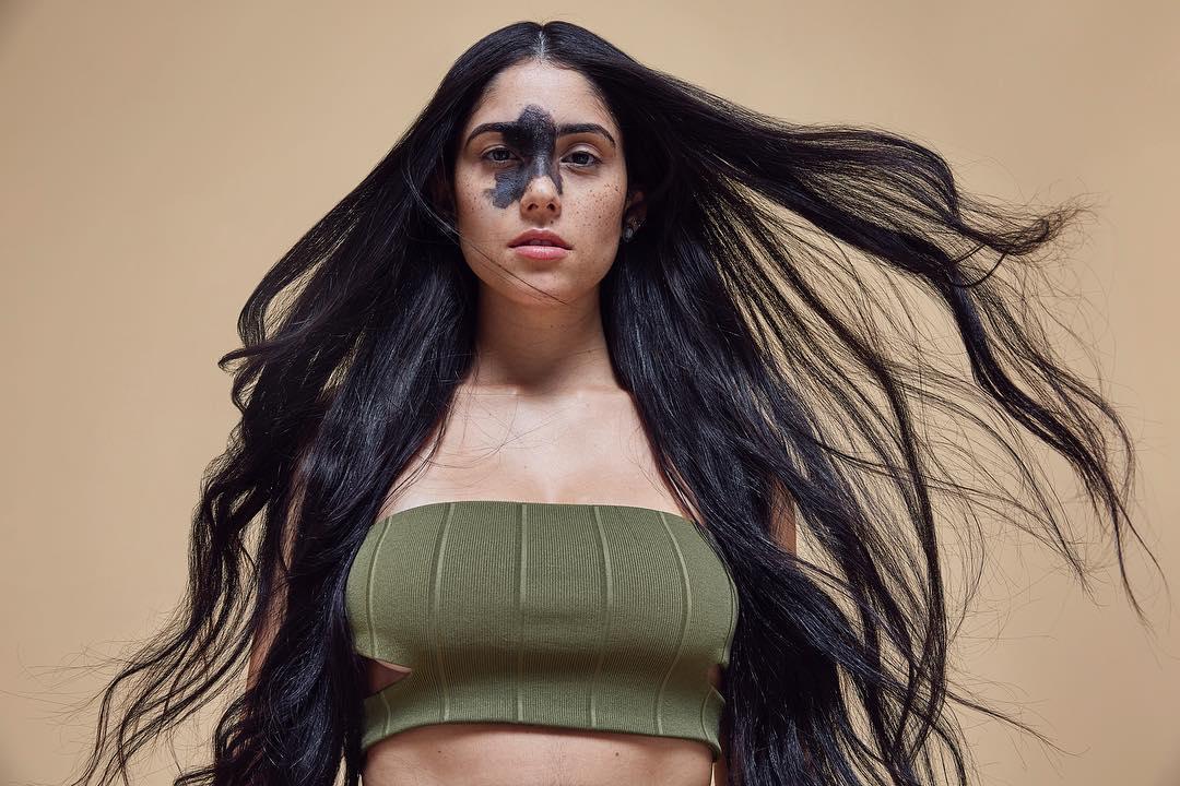 Mariana Mendes modelo con una mancha en el rostro posando para una sesión de fotos