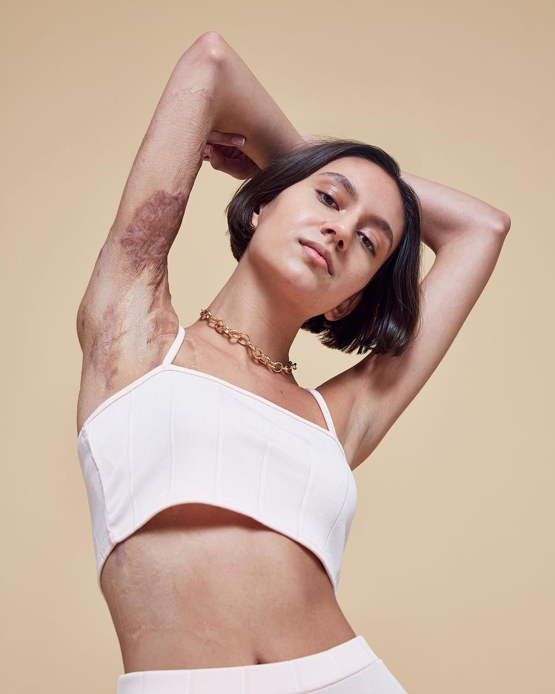 Isabella FernandesModelo con algunas partes del cuerpo quemadas