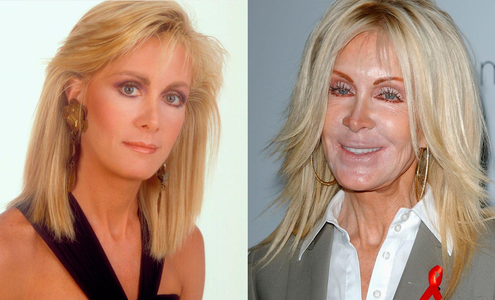 Famosas antes y después de las cirugías plásticas