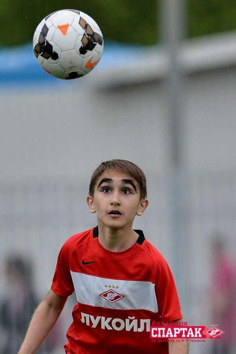 Niño ruso con las pestañas de 5 centímetros