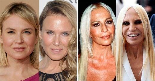 10 Celebridades que ya no reconocemos más; ¡las cirugías hicieron estragos en sus rostros!