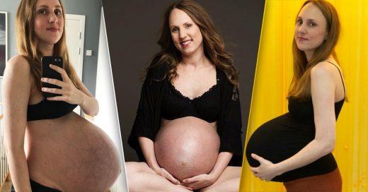 La barriga de una mujer que espera trillizos es impresionante