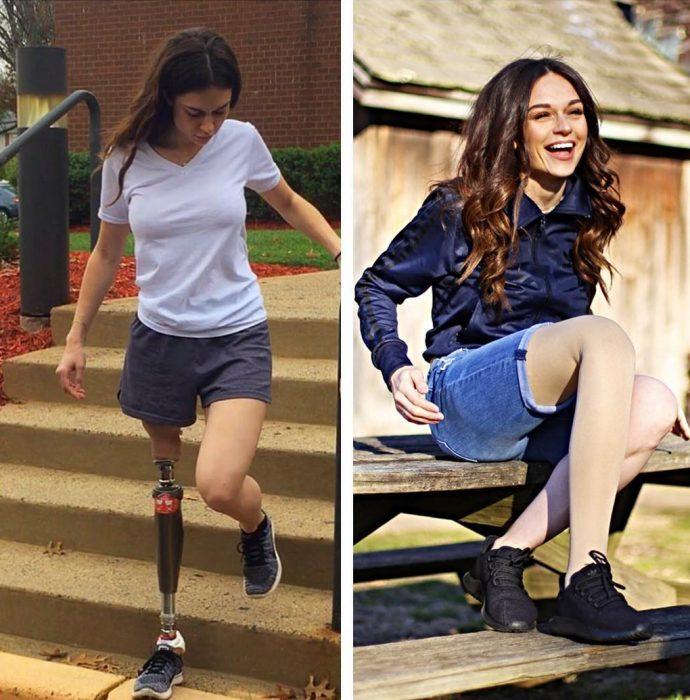 Chica con una pierna amputada subiendo y bajando escaleras