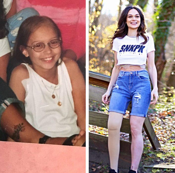 Chica a la que le amputaron la pierna cuando tenía 11 años y después de 30 siendo modelo