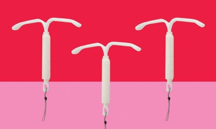 SIU el nuevo anticonceptivo para mujeres