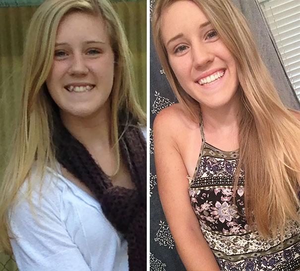 Personas antes y después de usar aparatos dentales