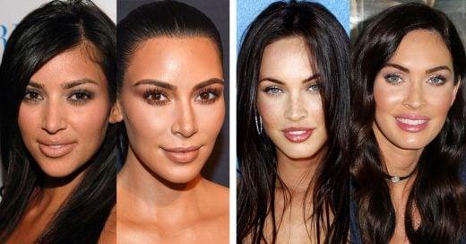 15 cirugías plásticas costosas que las famosas se han hecho