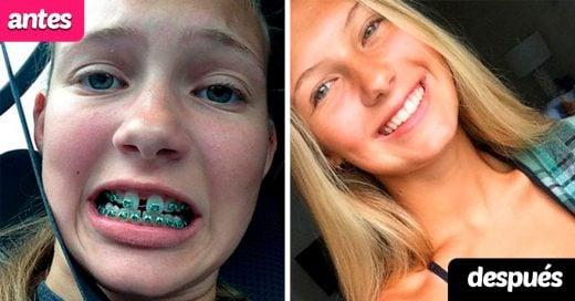 15 Personas que cambiaron gracias al uso de brackets