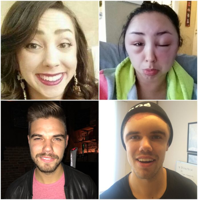 personas que han cambiado su rostro debido a una alergia
