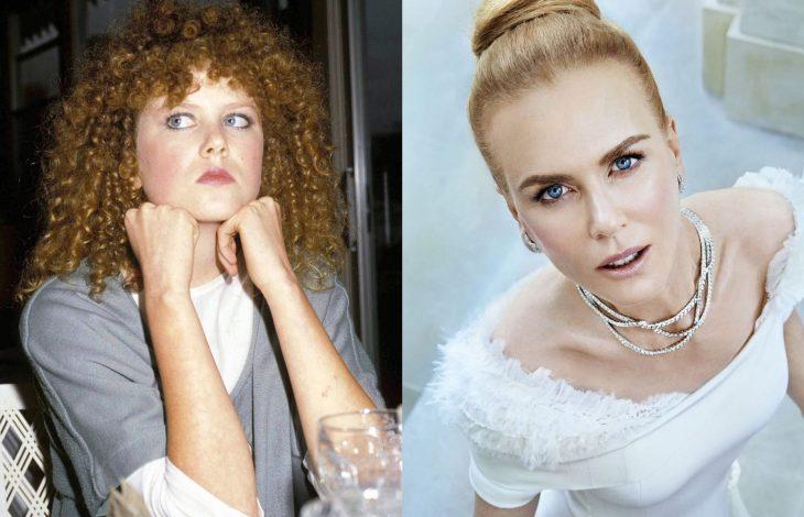 Famosas antes y después, Nicole Kidman