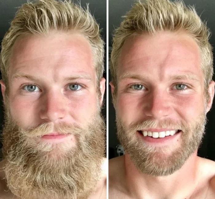 hombres antes y después de sonreír