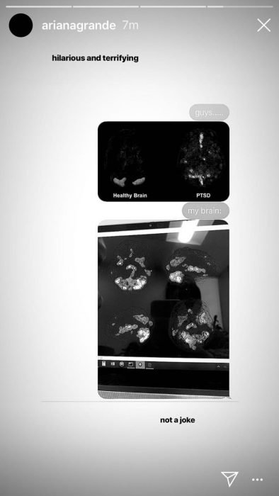 Captura de historia en Instagram de la cantante Ariana Grande donde habla de su enfermedad