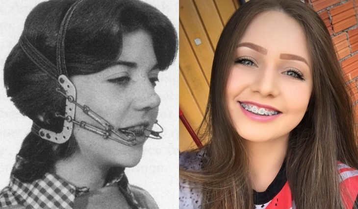 Artículos viejos y nuevos de belleza; aparatos dentales antiguos y modernos, chica con brackets
