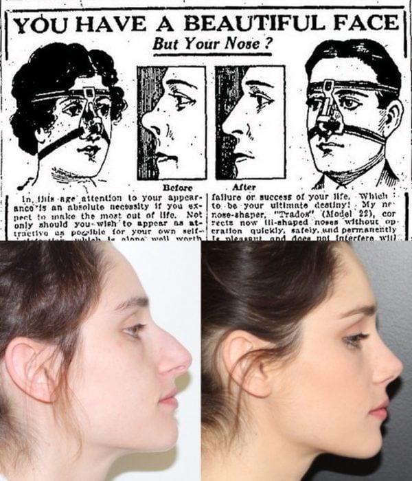 Artículos viejos y nuevos de belleza; rinoplastia antigua y moderna, nariz de mujer antes y después