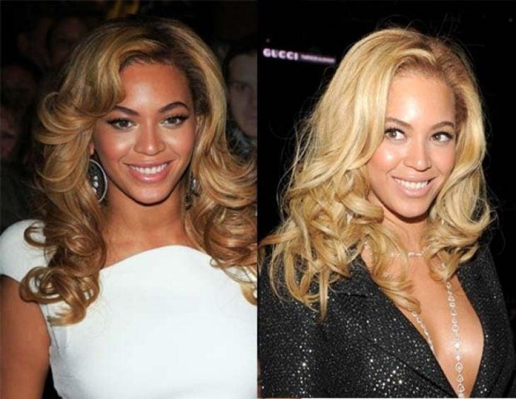 Beyoncé comparación antes y después operaciones