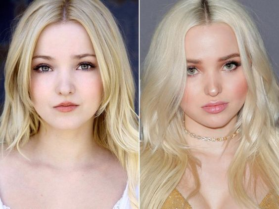 Dove Cameron before and after surgery