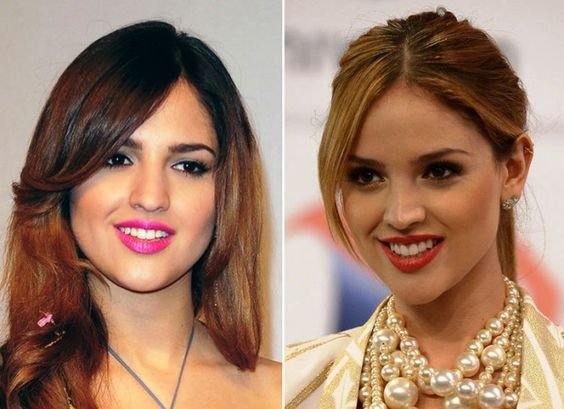 Eiza González result of rhinoplasty before and after