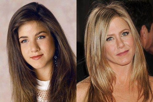 Jennifer Aniston rinoplastia desde hace muchos años