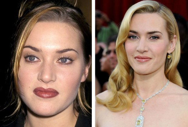 Bichectomy results of Kate winslet Rose