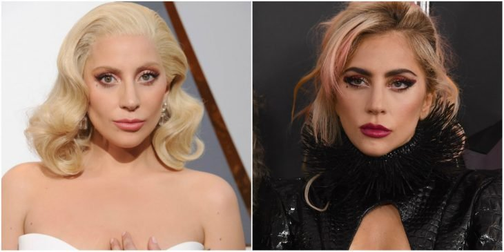 Lady Gaga before and after operation