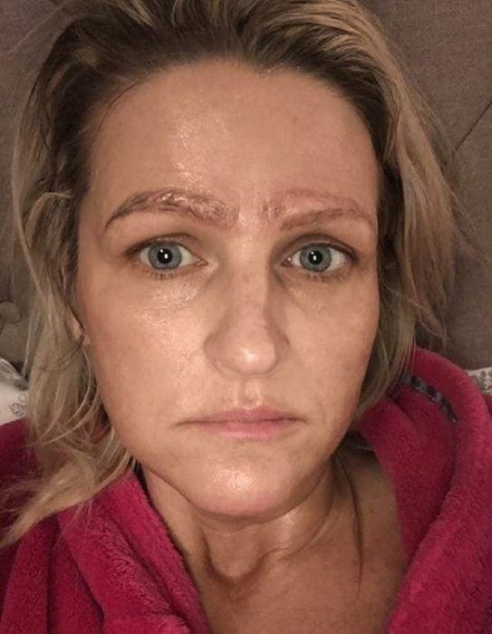 Jami Ledbetter, mujer rubia estadounidense terminó con cuatro cejas después de hacerse un microblading con una estafadora, cejas feas