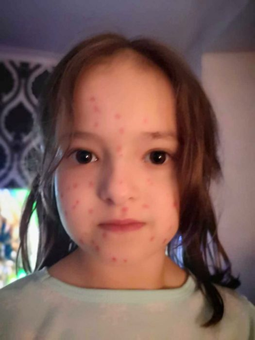 Lily Schooley, niña de seis años se pinta manchas rojas en la cara, piernas y brazos y finge tener varicela para faltar a clases