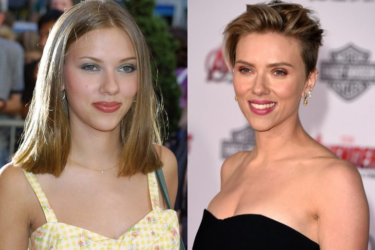 Scarlet Johansson, before and after surgery