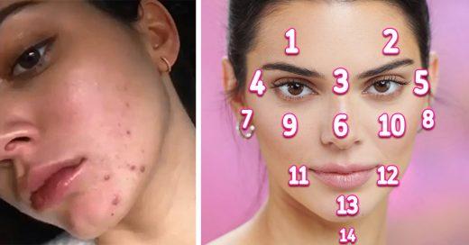 El acné de tu rostro podría revelar una enfermedad severa