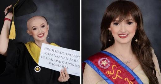 Estudiante mostró con orgullo su alopecia en su graduación