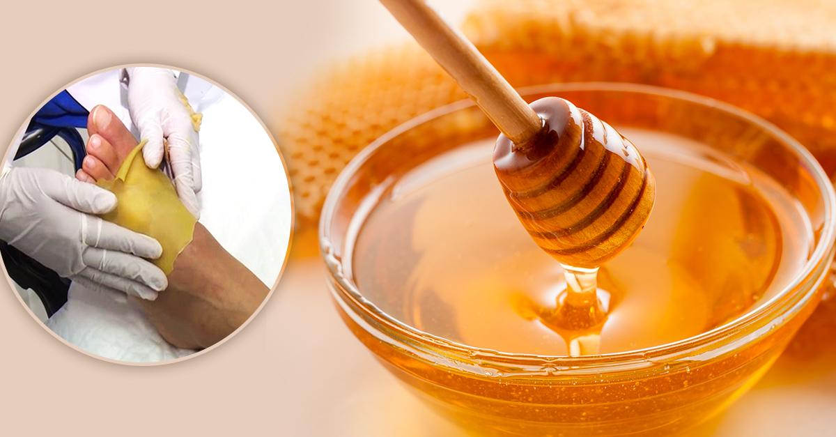 Parche de miel para personas con amputaciones NOTICIA
