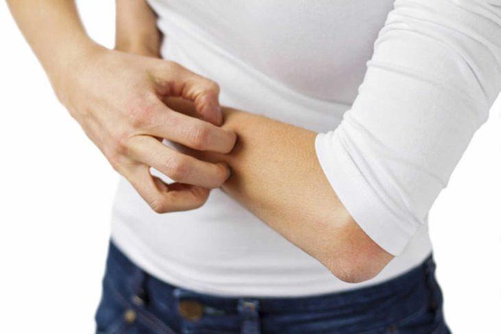 cuerpo de una mujer con blusa blanca que se rasca un brazo