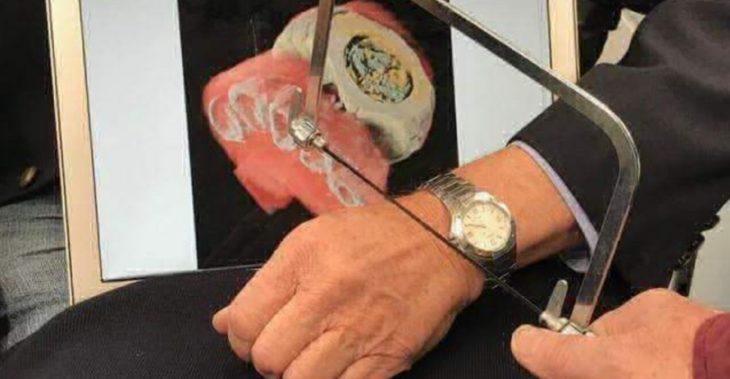 fotografía del escáner de radiografías a color y 3D haciendo un corte de una muñeca con reloj