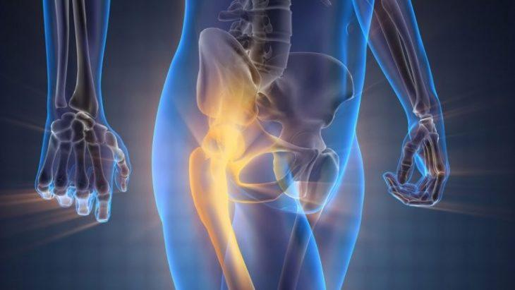 ilustración que asemeja una radiografía de una persona caminando y resalta los huesos de la cadera