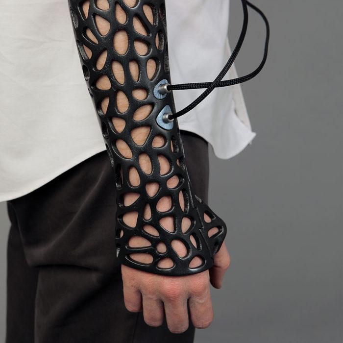 Osteoid conectado con el mecanismo de ultrasonido en un brazo