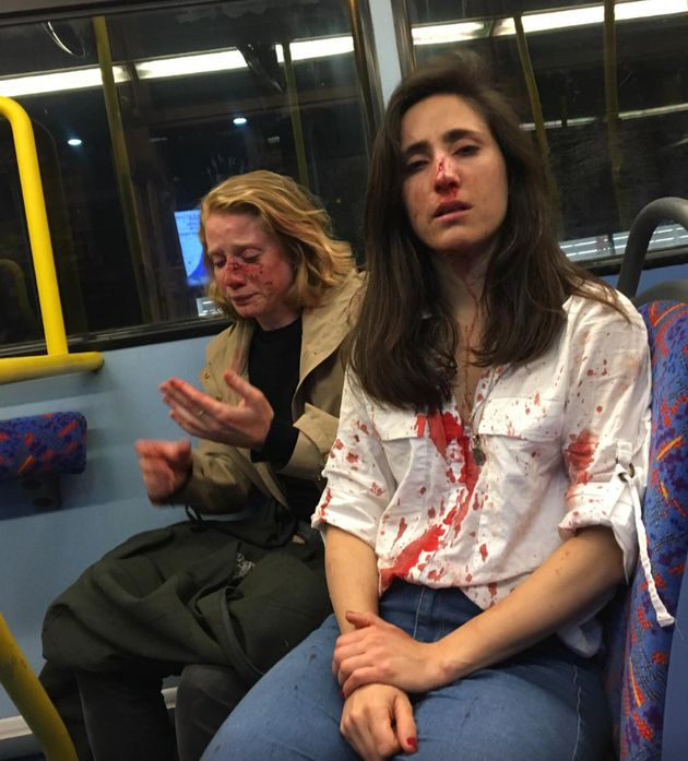 pareja de mujeres con la cara ensangrentada en un autobús