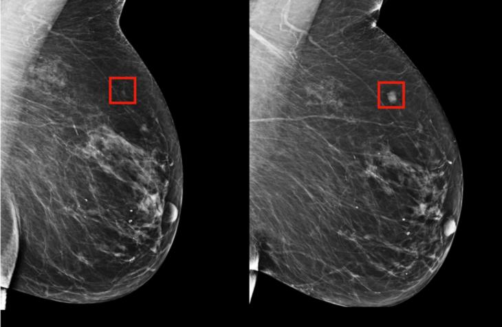 mamografía cáncer de mama inteligencia artificial
