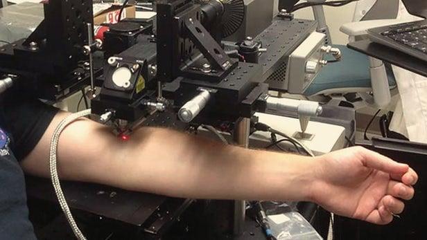 un brazo se extiende bajo un rayo láser que penetra en un punto
